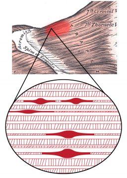 Afbeelding van trigger-points in het spierweefsel